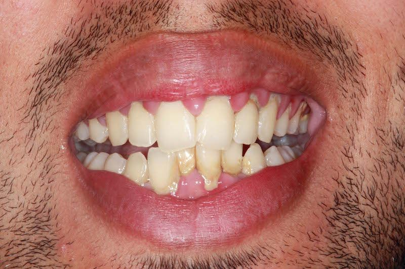 Kent dentist before teeth whitening