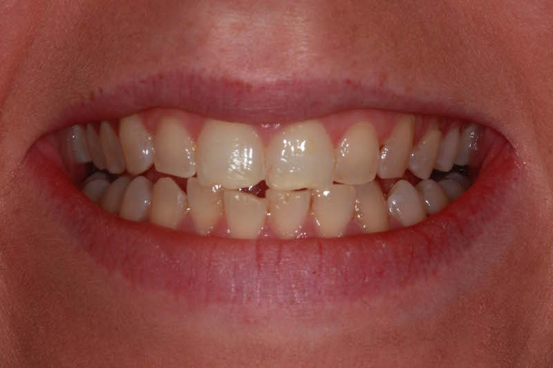 teeth whitening kent before