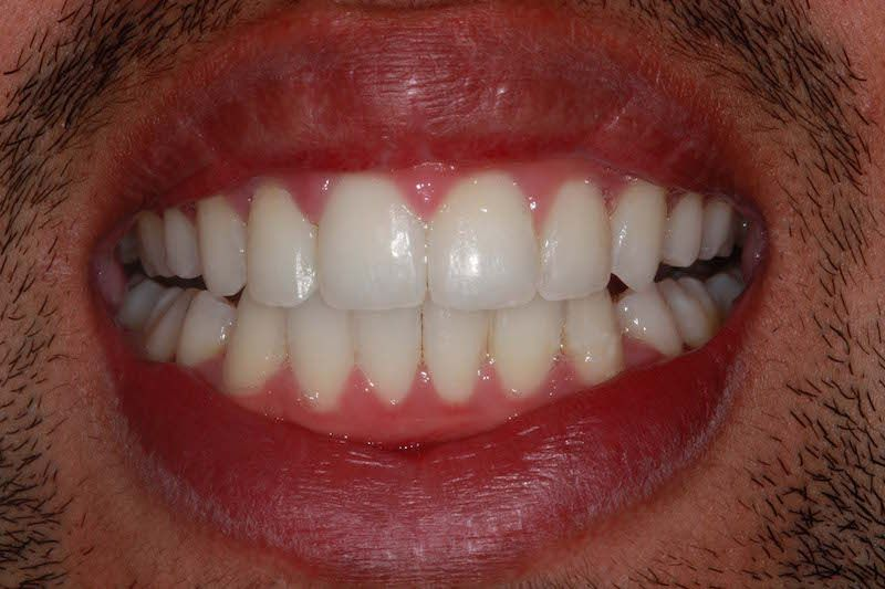 Kent dentist after teeth whitening