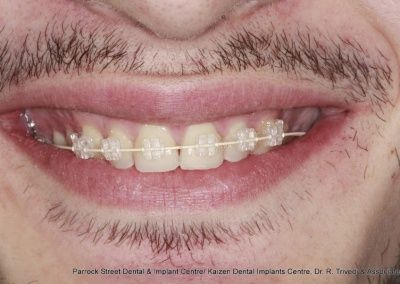 Clear fixed braces