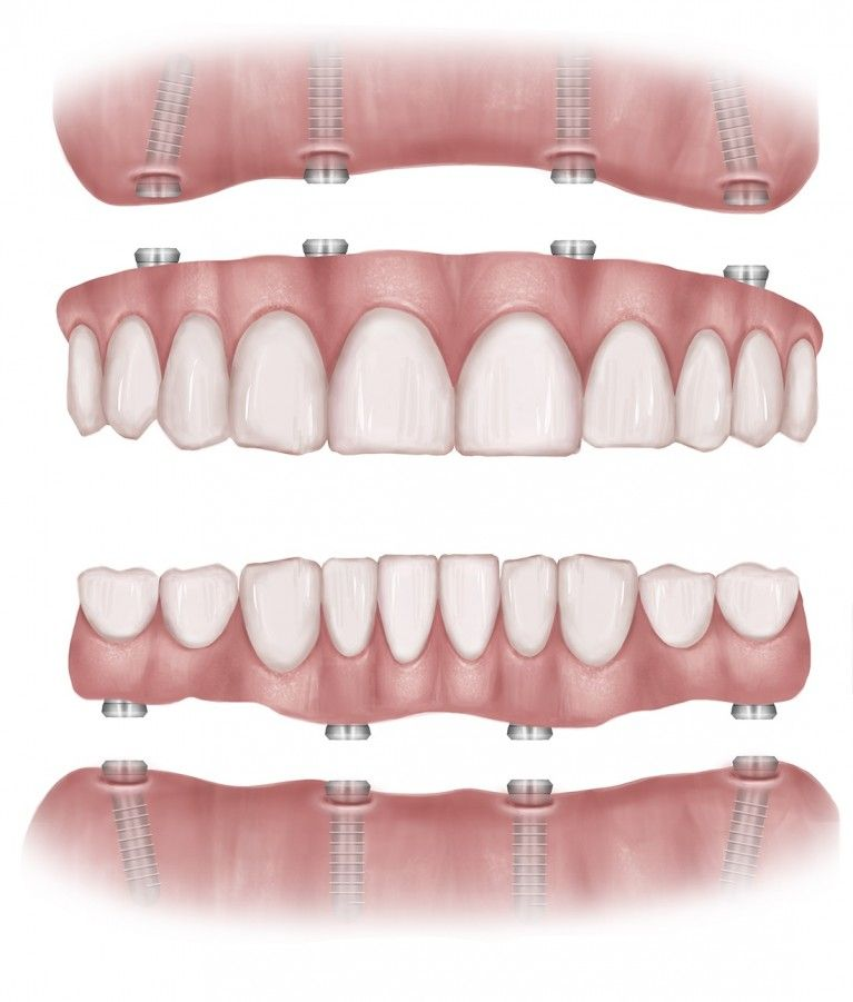 All On 4 Dental Implants Treatment Kent