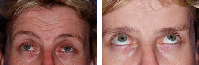 Anti Wrinkle Botox before and after case 2