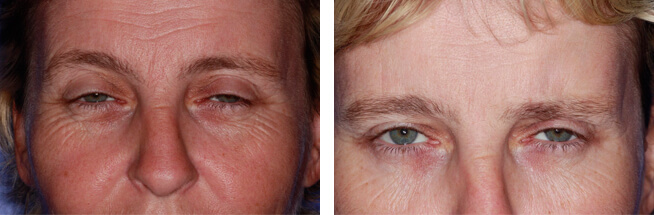Anti Wrinkle before and after case 1
