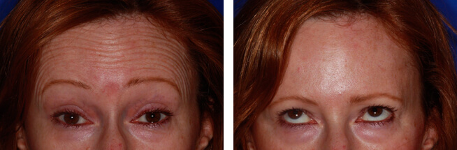 Botox Frown before after by Kent Dentist