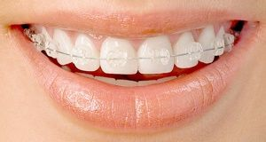 Clear Fixed Braces Kent