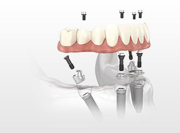 Dental Implants All-on-4
