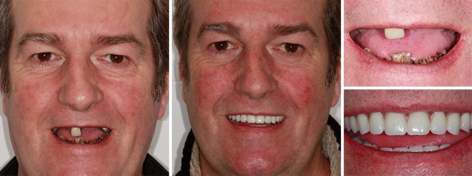 Full mouth with dental implants