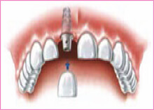 Tooth Implant Gravesend Kent