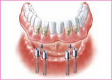 Teeth Implants Gravesend Kent