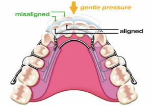 Inamn aligner how it works