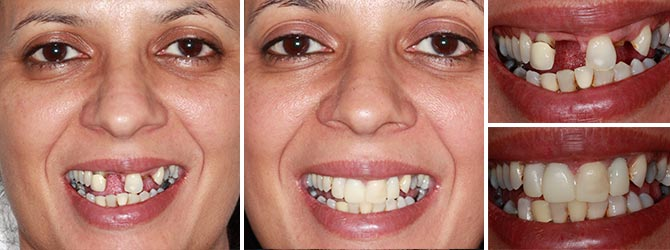 Replace missing front teeth with Dental Implants