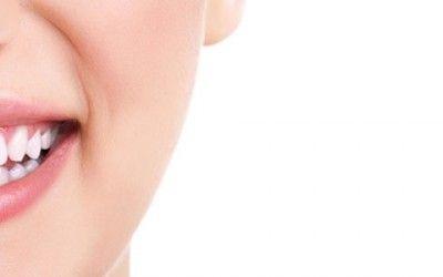 Teeth Whitening!