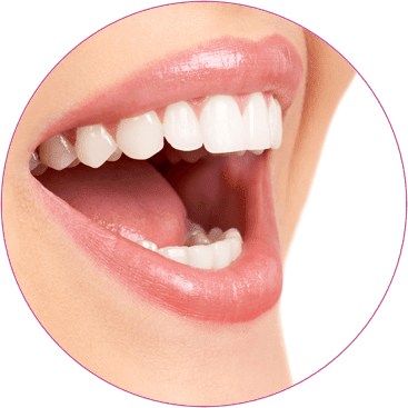 Teeth whitening Kent