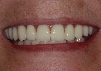 After-Christine-upper-full-arch-dental-implants-kent04