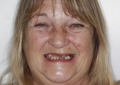 Before-Christine-upper-full-arch-dental-implants-kent01