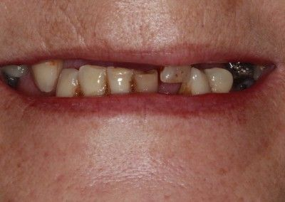 Before-Christine-upper-full-arch-dental-implants-kent02