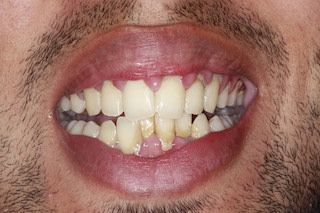 Crowded-bottom-teeth-before