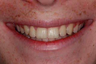 Crowded-top-bottom-teeth-after