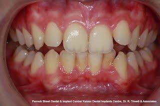 Crowded-top-bottom-teeth-before