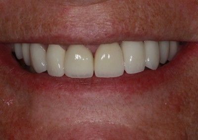 Genine-Cain-upper-smile-implants-after
