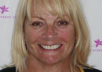 Genine-Cain-upper-smile-implants-after-face