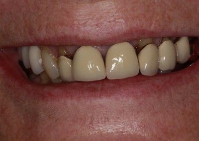 Genine-Cain-upper-smile-implants-before