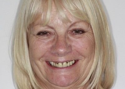 Genine-Cain-upper-smile-implants-before-face