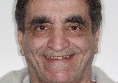 Henry-upper-all-on-4-dental-implants-kent01