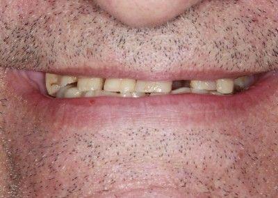Henry-upper-all-on-4-dental-implants-kent03