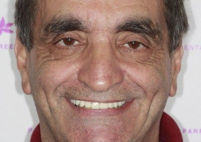 Henry-upper-all-on-4-dental-implants-kent05