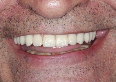Henry-upper-all-on-4-dental-implants-kent07