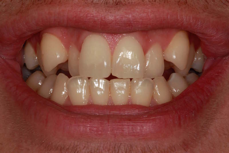 crowded top teeth fixed with braces before and after photos