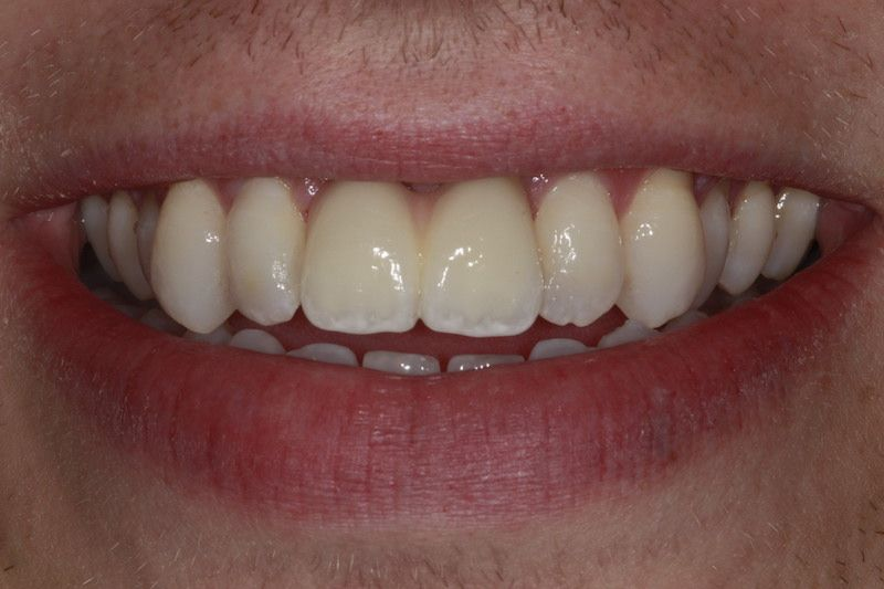 Same Day Tooth Tooth Implant Cost Gravesend Kent