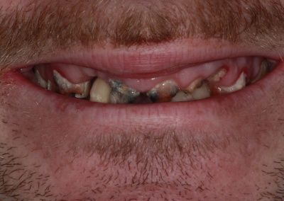 Before All on 4 dental implants Gravesend Dentist