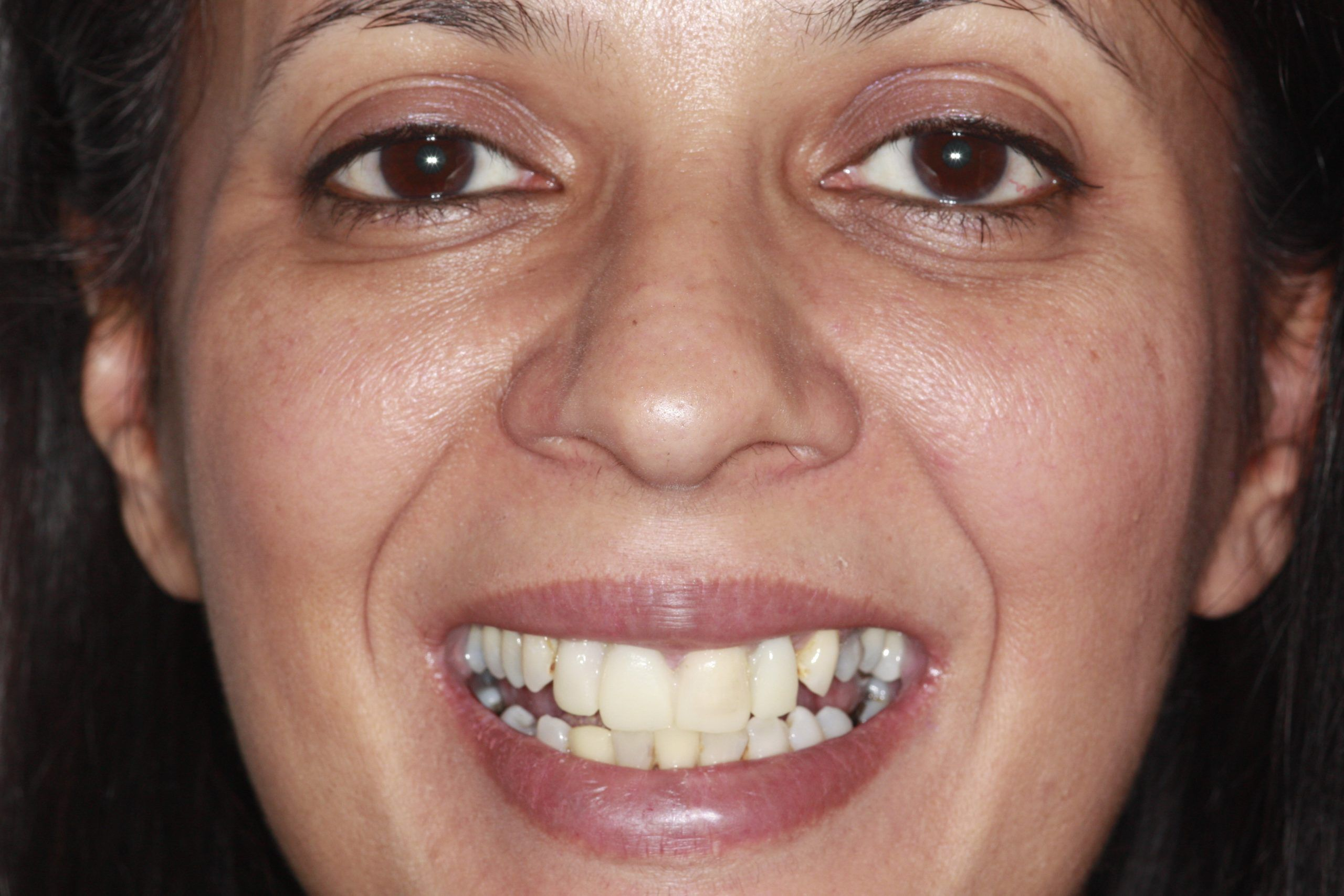 New Smile With Dental Implants Before & After Videos & photos