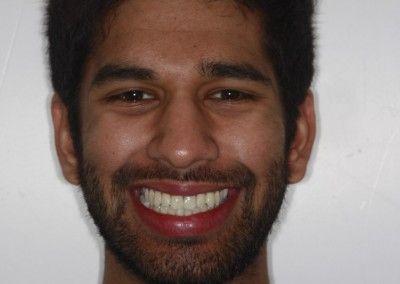 After smile makeover Kent