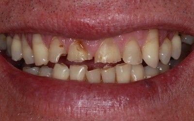 How can Sugar affect my Teeth?