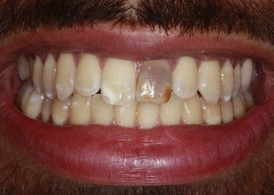 before-new-smile-mouth-case-2-kent