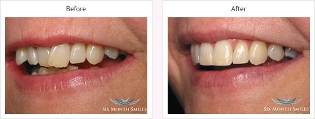 Six month smile before and after case 14 Kent
