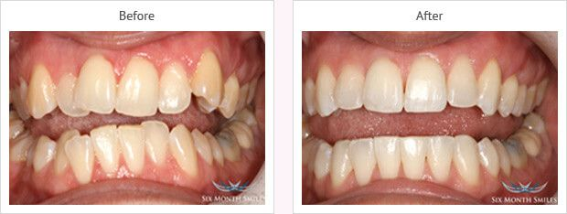 Six month smile before and after case 15
