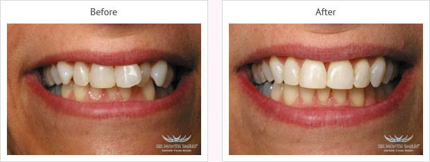 Six month smile before and after case 3 Kent