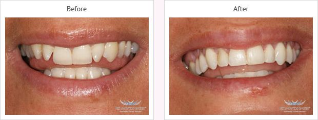 Six month smile before and after case 5 Kent