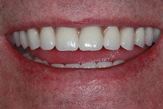 full-mouth-after