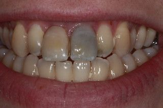Missing Front Teeth Before Amp After Photos Dental Implants