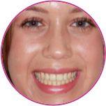 Braces review by patient at Parrock Dental Gravesend Kent