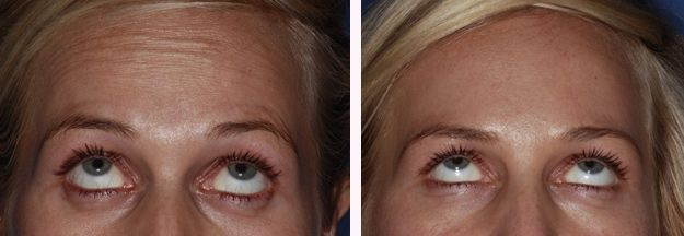 Botox Forehead before after by Kent Dentists