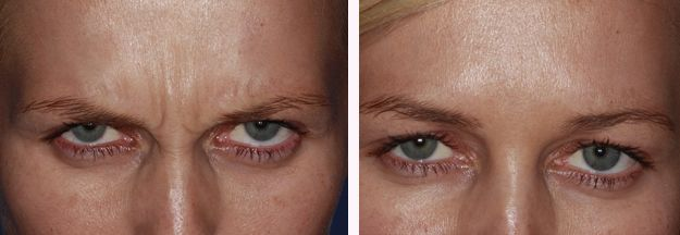 Botox Frown before after by Kent Dentists