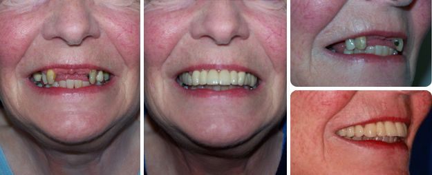 Replacement of her upper partial denture with fixed teeth