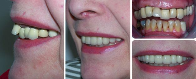 Crowns in wrong position which are discoloured and leaking