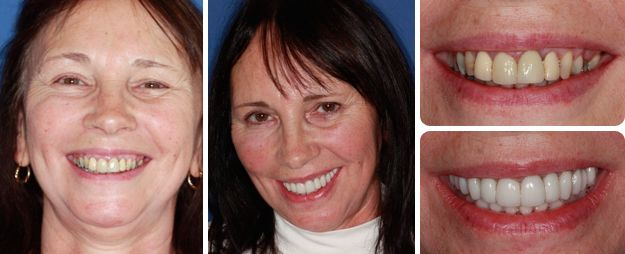 Improve the colour, position and overall shape of her teeth and gums – Sue
